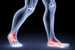 Supination and Pronation Issues and Treatments