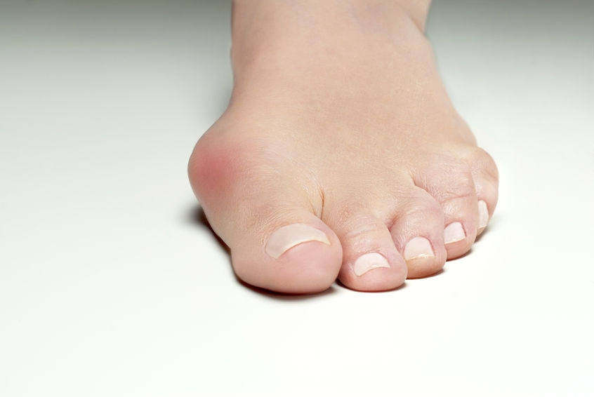 Foot With Irritated Bunion