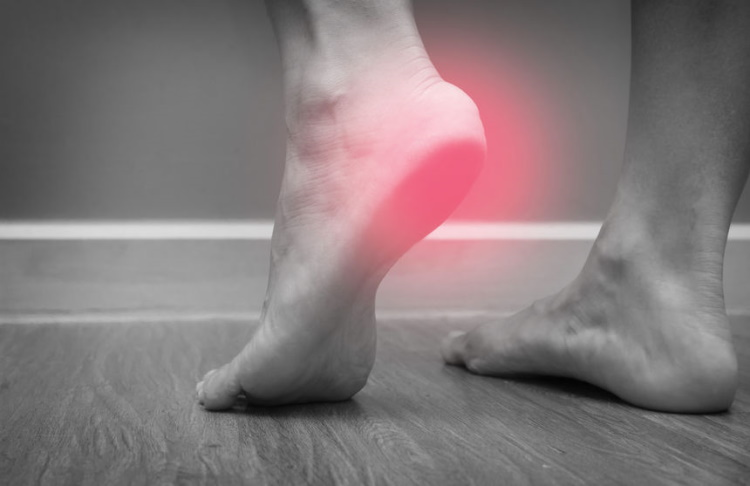 Female Foot with Plantar Fasciitis