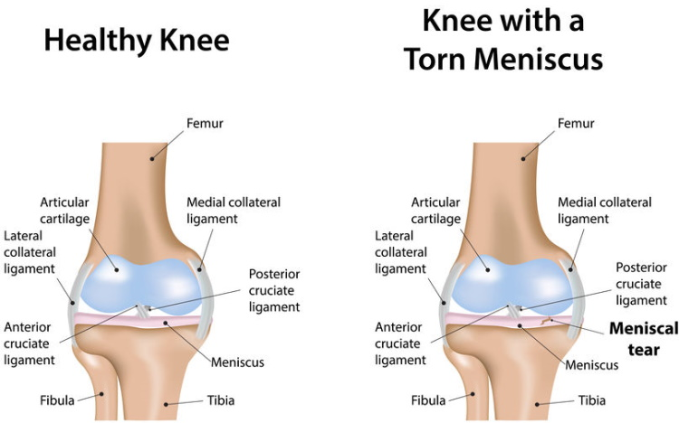 Meniscus Tear Vs Healthy Knee